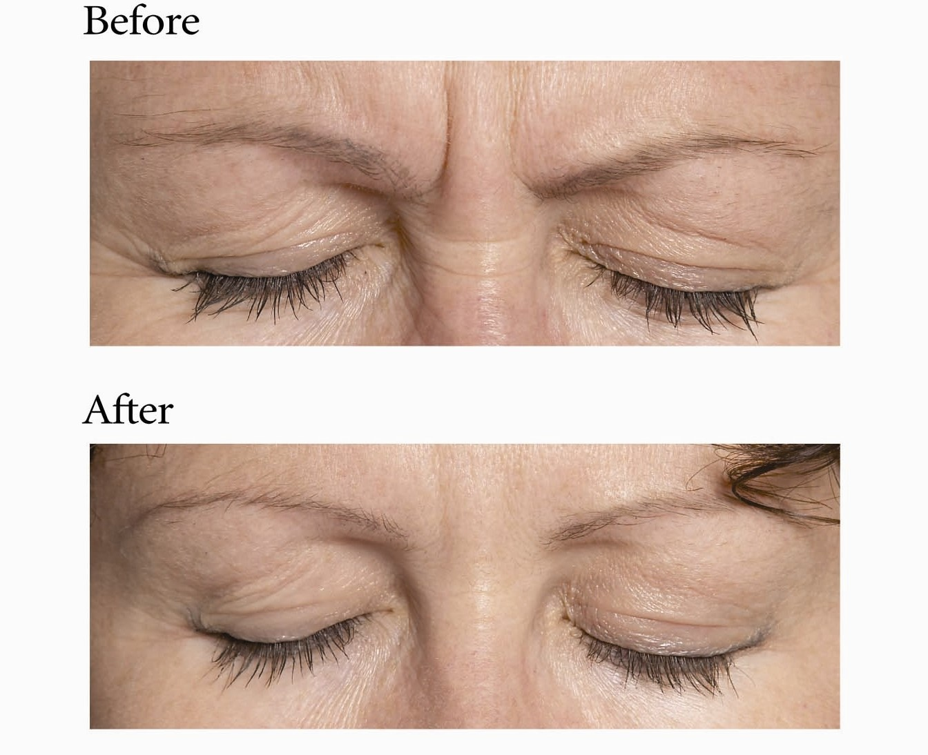 Anti Ageing Botox Treatments