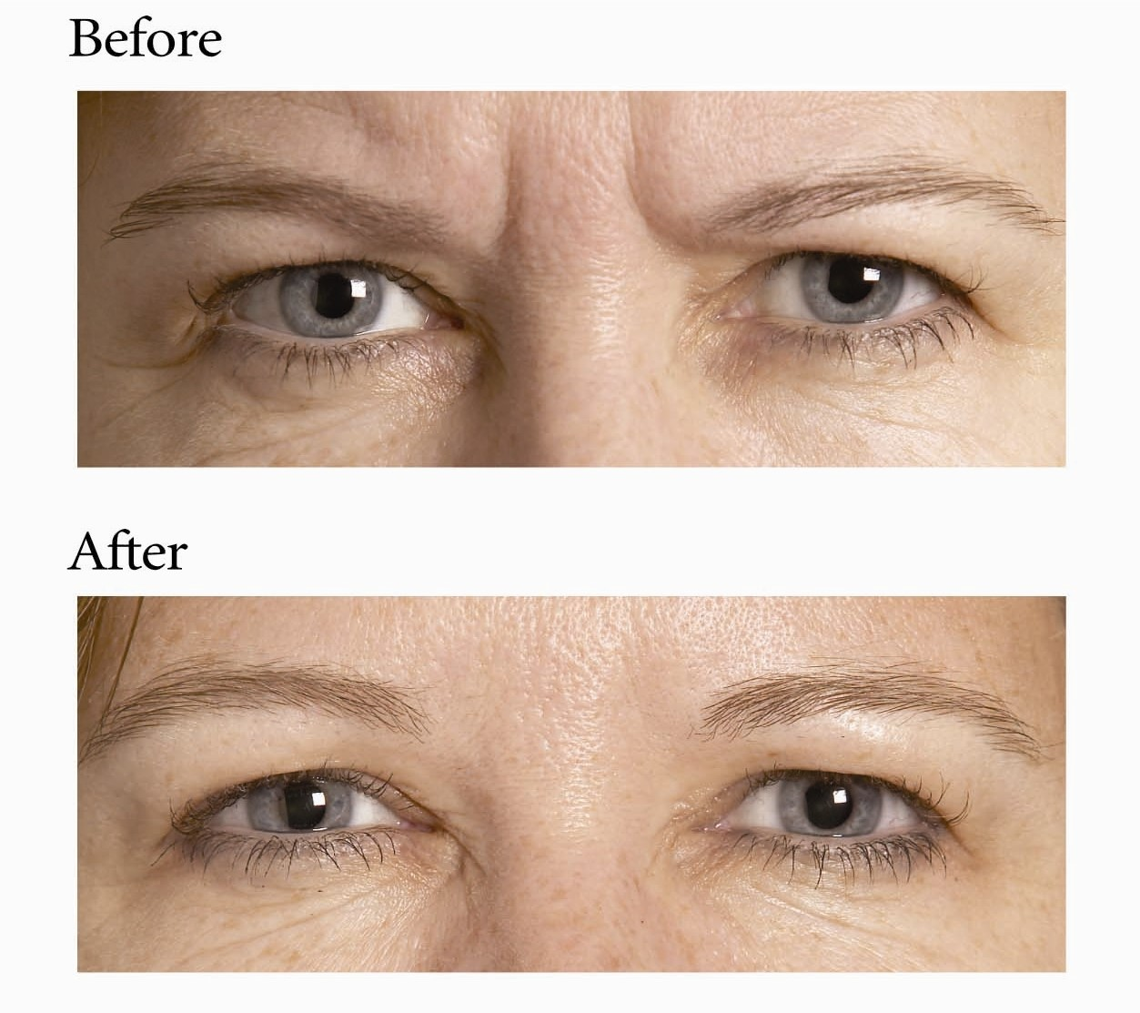 Botox Treatment Before & After