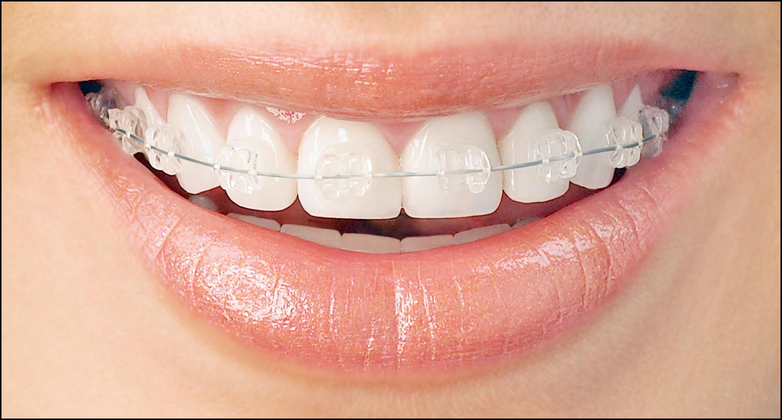 Orthodontics, Braces