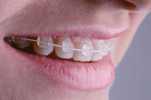 Ceramic fixed braces and orthodontics at Rock House Dental Practice Dentist Wolverhampton