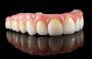 A picture of a dental implant bridge on a mirror Dentist Wolverhampton