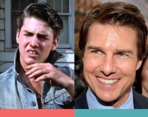Braces Invisalign Before and After Tom Cruise