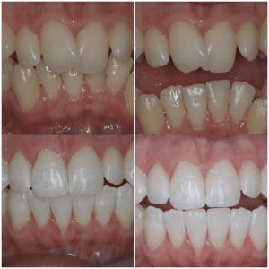 Invisalign and Teeth Whitening Before and After